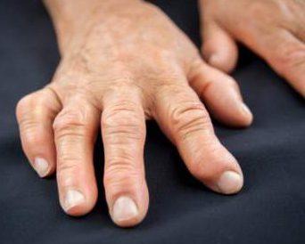 arthritic_hands_4