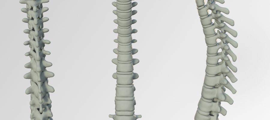 spine-3220105